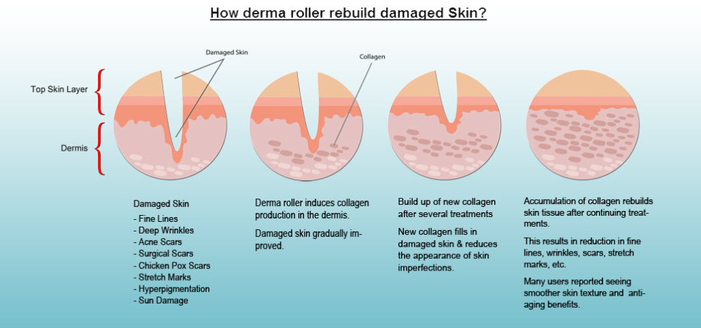 how does derma roller work